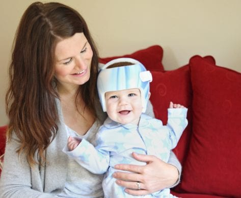 What is Plagiocephaly and Brachycephaly?