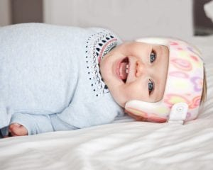 What is Plagiocephaly and Brachycephaly - tummy time