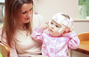 Plagiocephaly helmet or not?