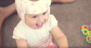 A baby wearing a plagiocephaly helmet