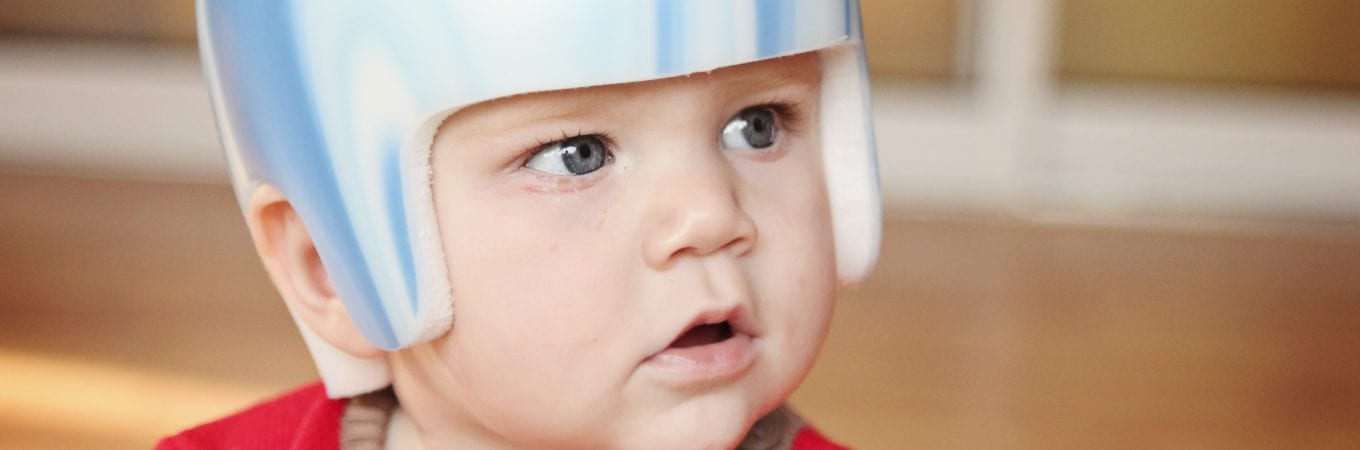 Plagiocephaly Treatment NHS Debate