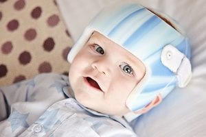 Pillow for flat head syndrome - do plagiocephaly pillows work?