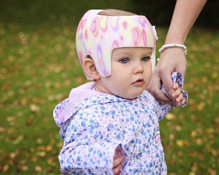 Plagiocephaly in summer