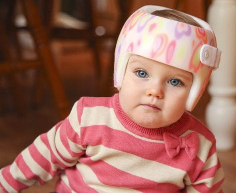 Incidence of Plagiocephaly in Infants as High as 46.6%