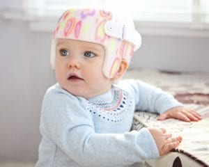 The Relationship between Plagiocephaly and Torticollis