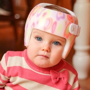 Plagiocephaly research