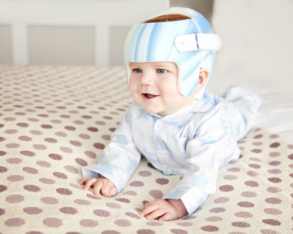 Is Plagiocephaly Just Cosmetic If So Why Bother With