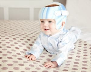 Is There A Link Between Plagiocephaly And Developmental Delay