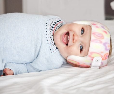 How to Prevent Plagiocephaly Developing in Infants