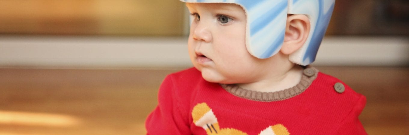 Is There a Relationship Between Plagiocephaly and Ear Infections?