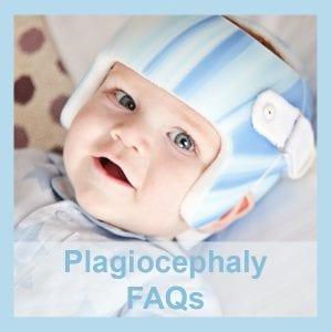 plagiocephaly-faqs