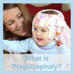 what-is-plagiocephaly