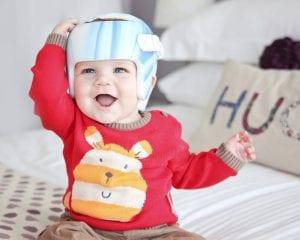 Flat Head in Babies