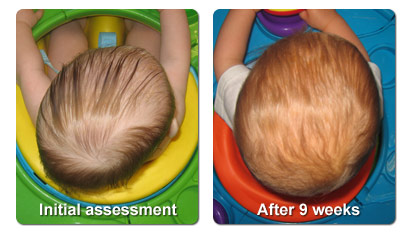 Plagiocephaly treatment - before and after