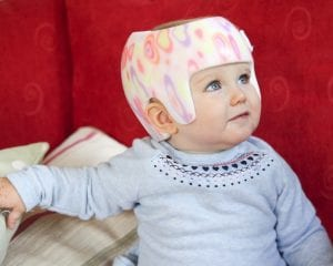 Why can't you get a plagiocephaly helmet on the NHS?