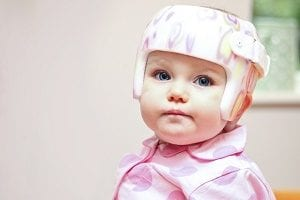 Baby with cranial remoulding helmet