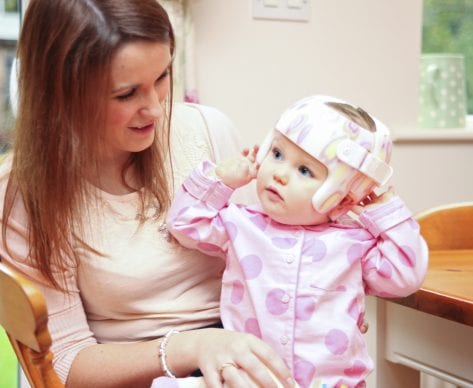 How Long Does it Take to Correct Plagiocephaly?