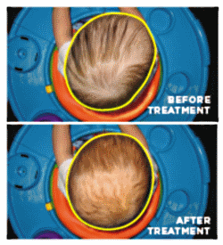 before-after-treatment