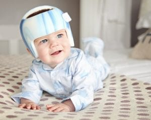 Baby undergoing plagiocephaly treatment