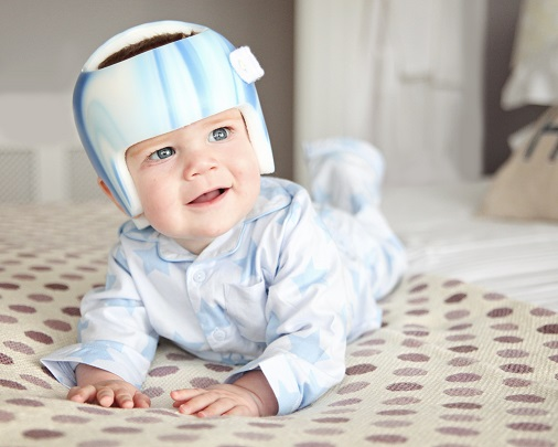 plagiocephaly-treatment