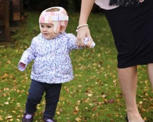 Baby with plagiocephaly helmet walking