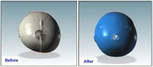 Before and after scans for plagiocephaly treatment