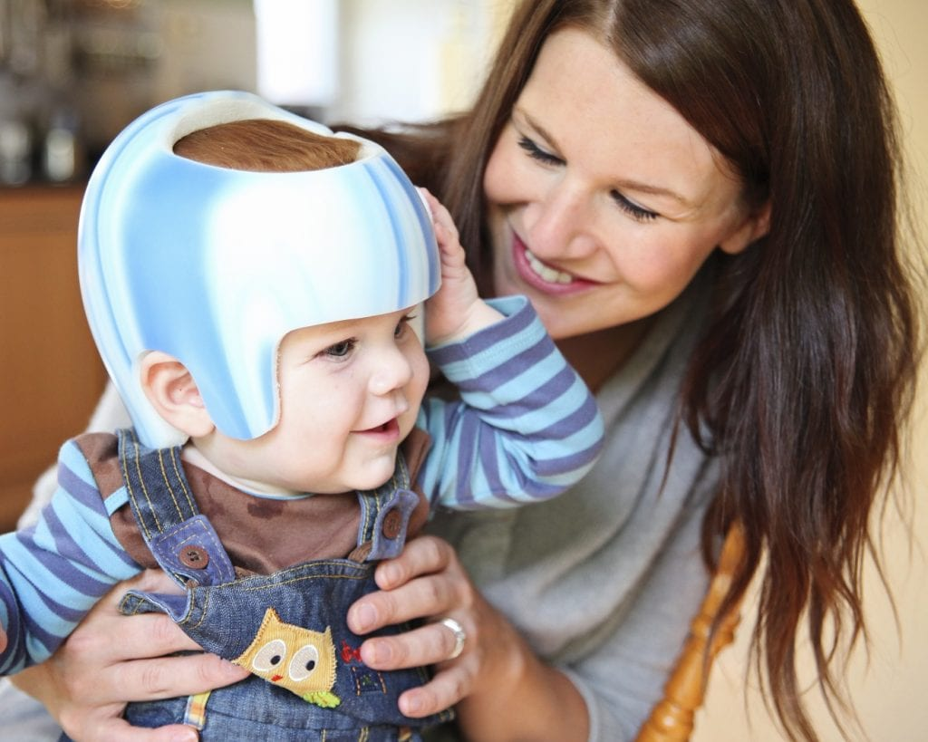 Mum and baby with plagiocephaly helmet