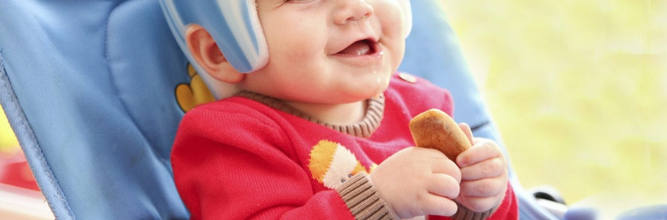 Plagiocephaly: to Helmet or not to Helmet?