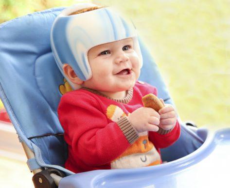 Plagiocephaly: to Helmet or not to Helmet?