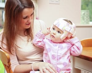 Mum and baby with helmet for plagiocephaly