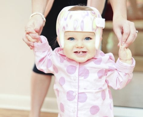Plagiocephaly and Facial Asymmetry