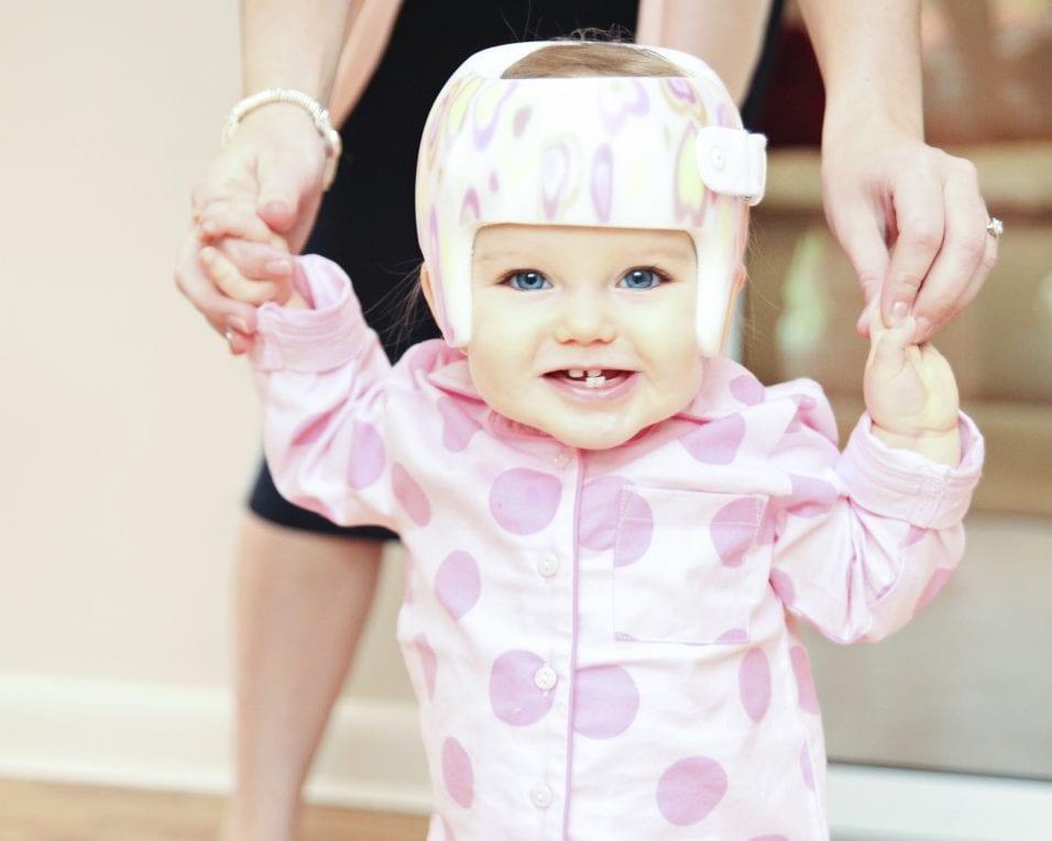 Plagiocephaly and Facial Asymmetry