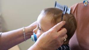 Measuring Plagiocephaly