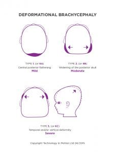 deformational brachycephaly head shape chart - flat head syndrome