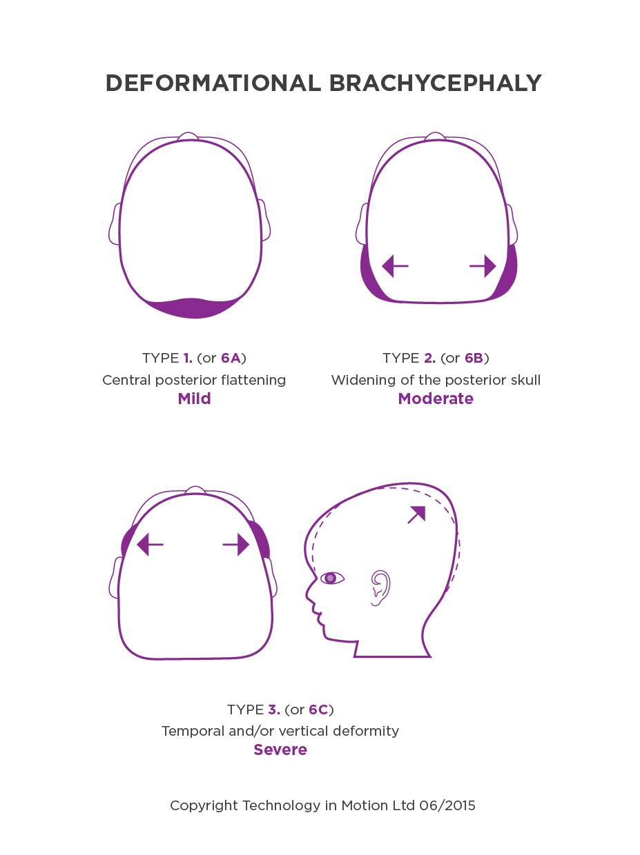 Deformational Plagiocephaly Severe Plagiocephaly