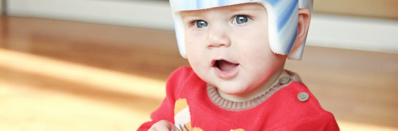 Choosing a Plagiocephaly Clinic