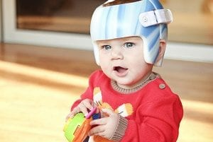 Baby with TiMband helmet