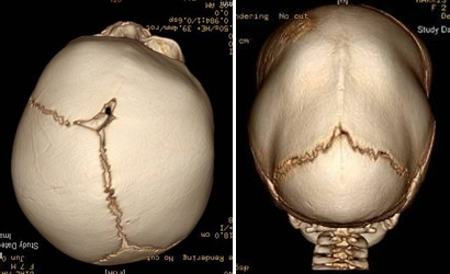Craniosynostosis in two of the sutures