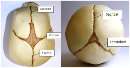 Normal skull sutures