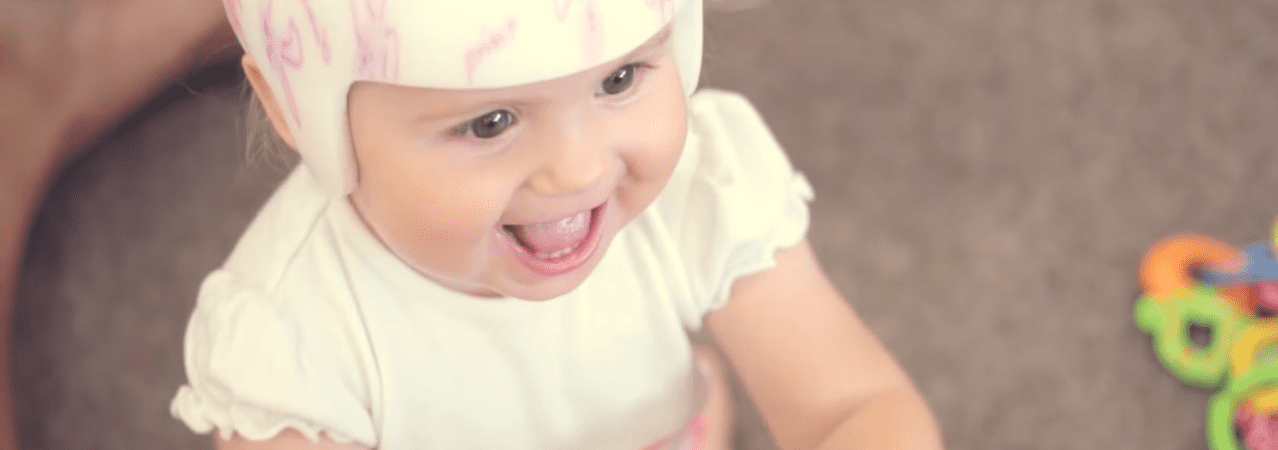 How Comfortable is a TiMband Plagiocephaly Helmet?