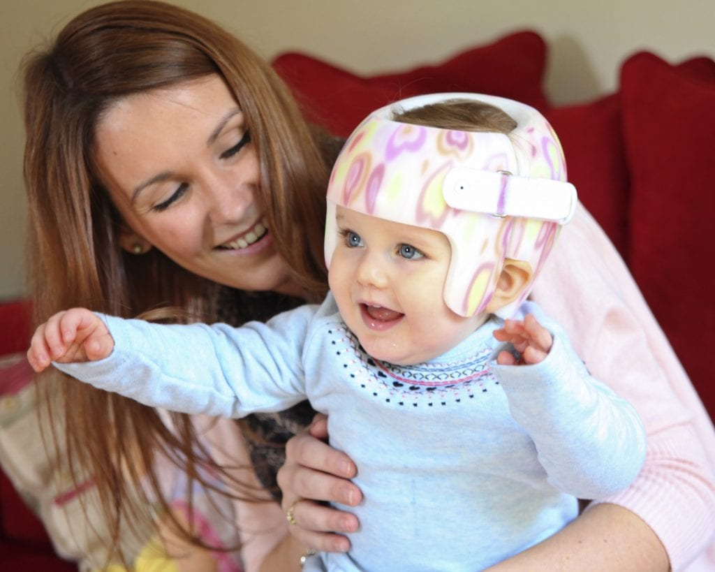 how to prevent plagiocephaly