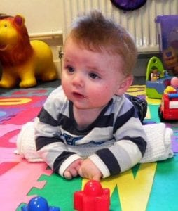tummy time and repositioning for torticollis example