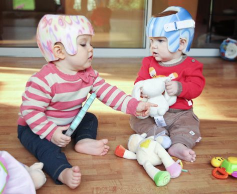 Key Differences between Plagiocephaly and Brachycephaly
