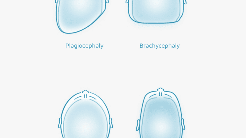 Normocephaly Explained: What is a 'Normal' Head Shape?