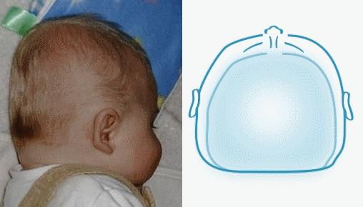 plagiocephaly vs brachycephaly