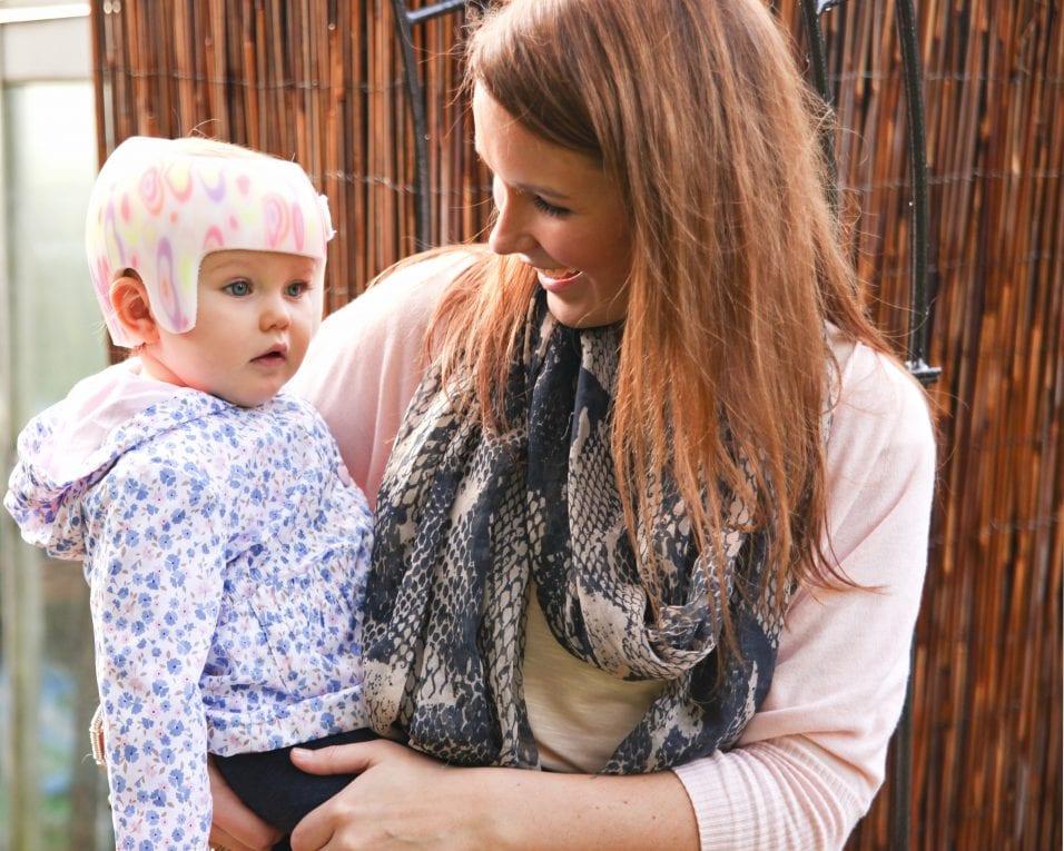 Is Flat Head Syndrome Genetic?