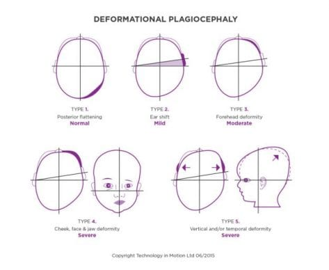 Deformational Plagiocephaly Explained