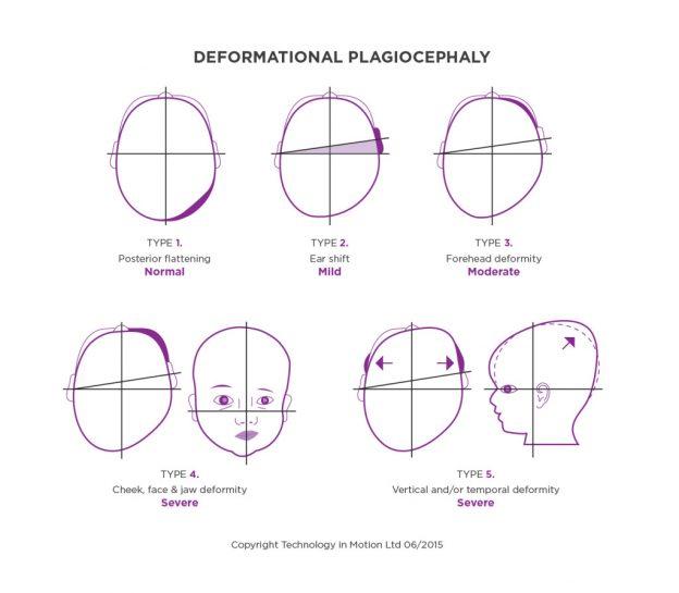 Deformational Plagiocephaly Explained