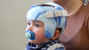 Cranial Helmet for Flat Head Syndrome