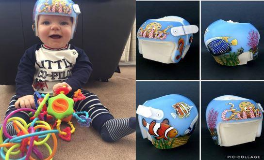 Plagiocephaly Helmet Stickers Uk Best Helmet - Baby helmet decals